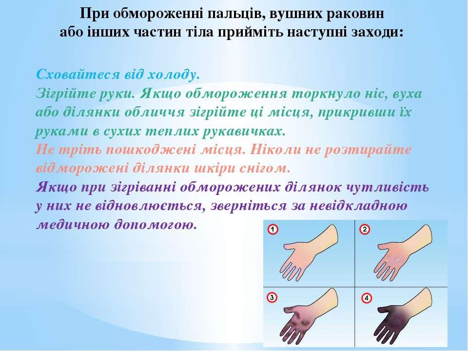 Сховайтеся від холоду. Зігрійте руки. Якщо обмороження торкнуло ніс, вуха або...