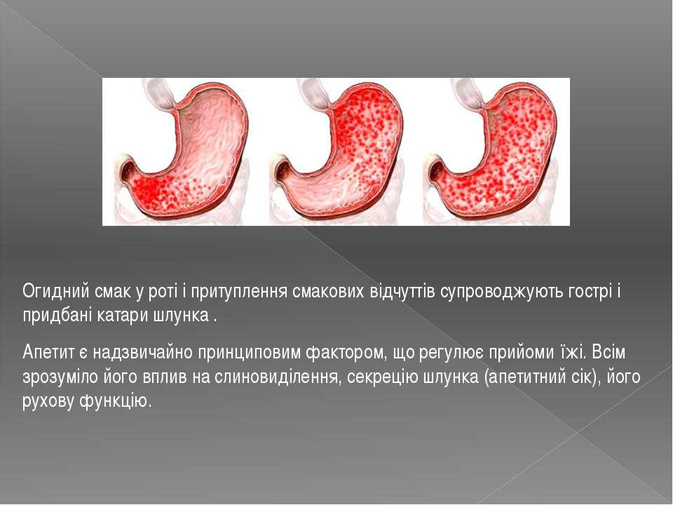 Огидний смак у роті і притуплення смакових відчуттів супроводжують гострі і п...