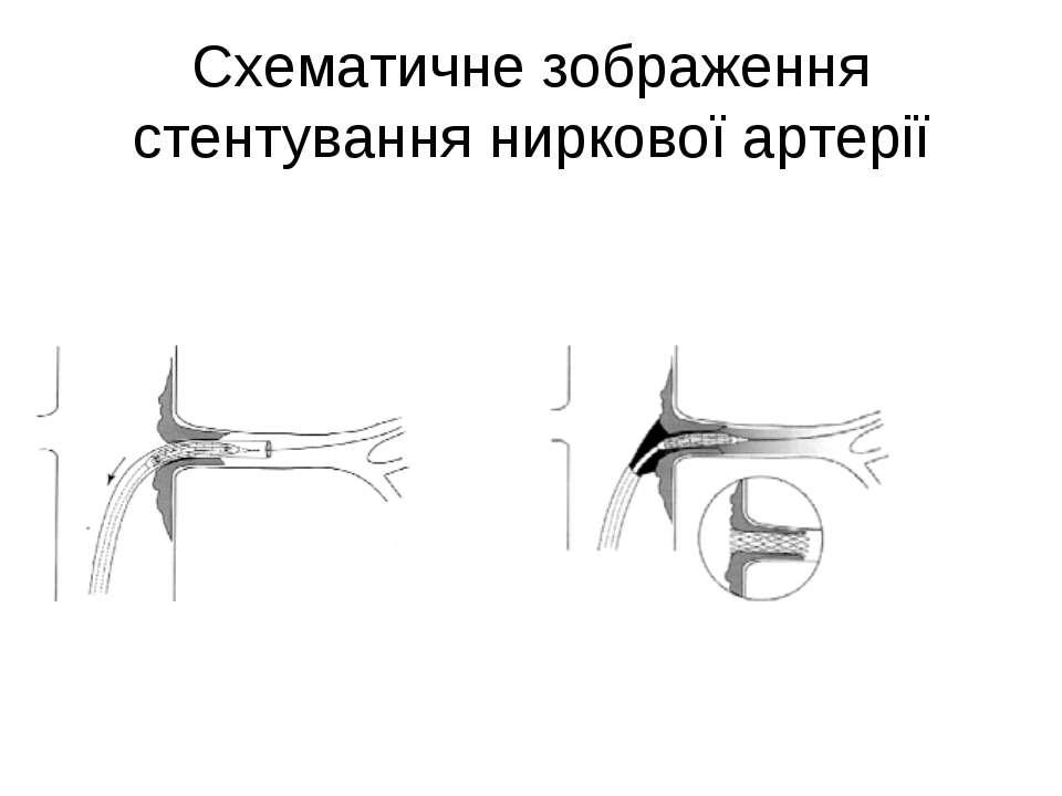 Схематичне зображення стентування ниркової артерії