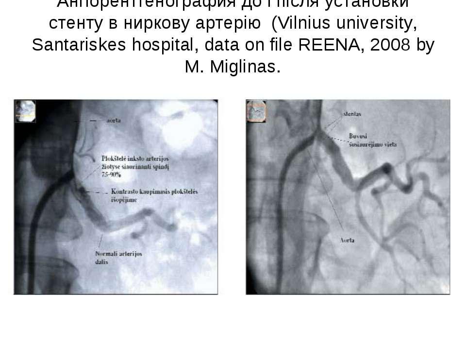 Ангіорентгенография до і після установки стенту в ниркову артерію (Vilnius un...