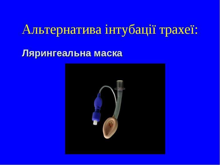 Альтернатива інтубації трахеї: Лярингеальна маска