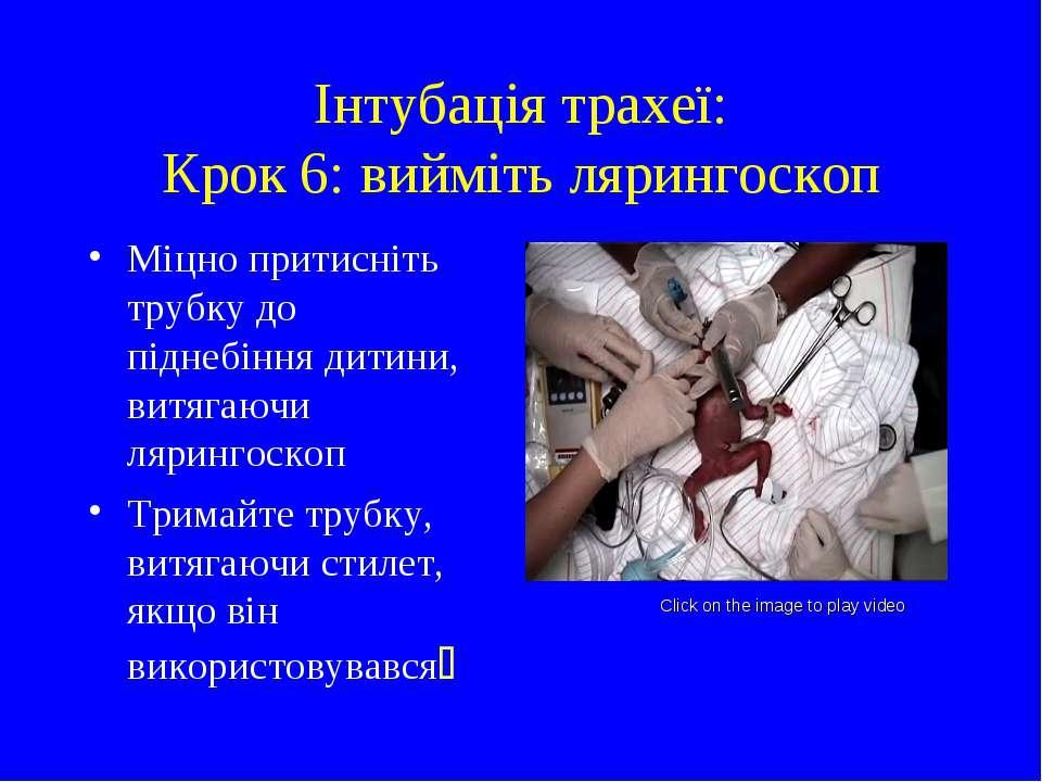 Інтубація трахеї: Крок 6: вийміть лярингоскоп Міцно притисніть трубку до підн...