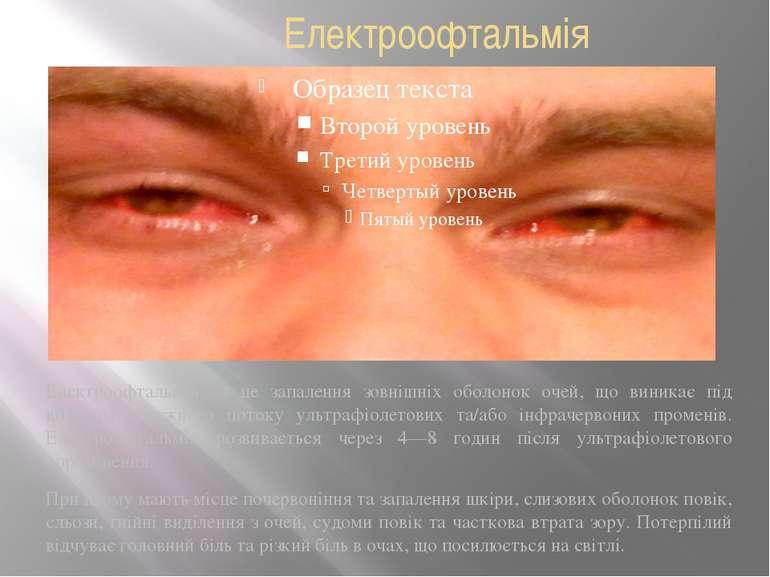 Електроофтальмія Електроофтальмія — це запалення зовнішніх оболонок очей, що ...