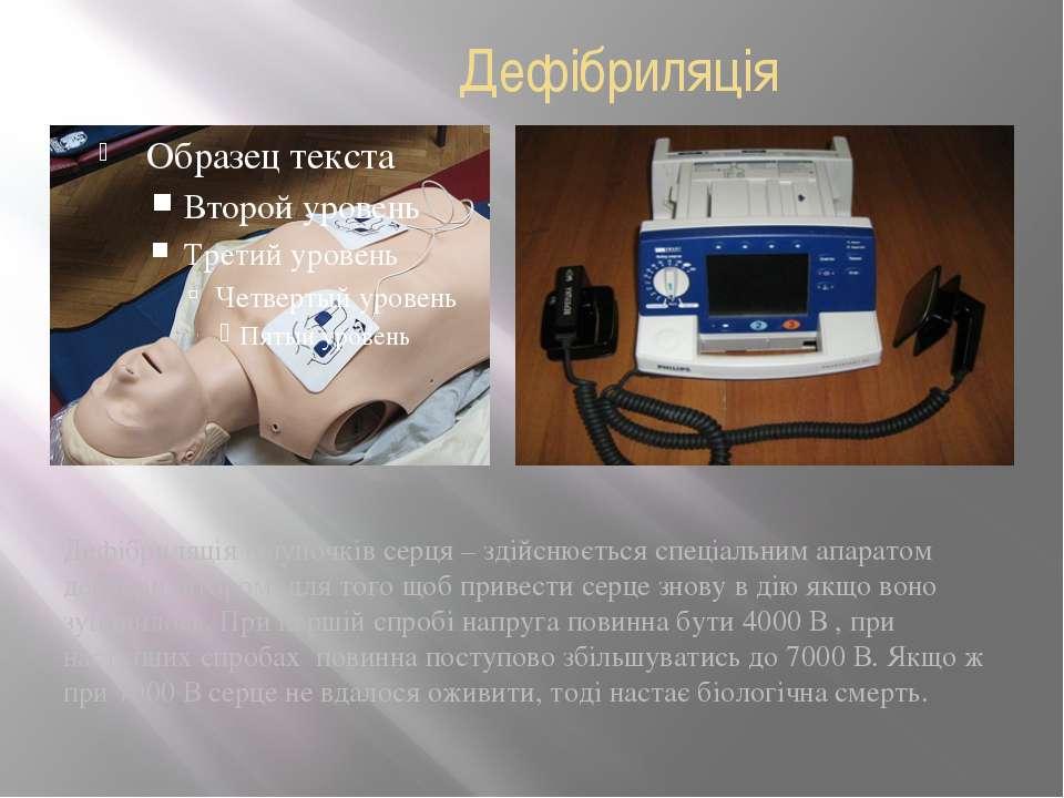 Дефібриляція Дефібриляція шлуночків серця – здійснюється спеціальним апаратом...