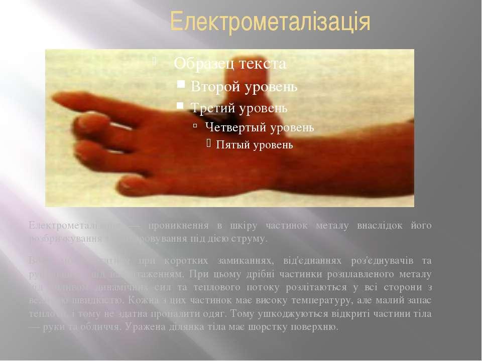 Електрометалізація Електрометалізація — проникнення в шкіру частинок металу в...
