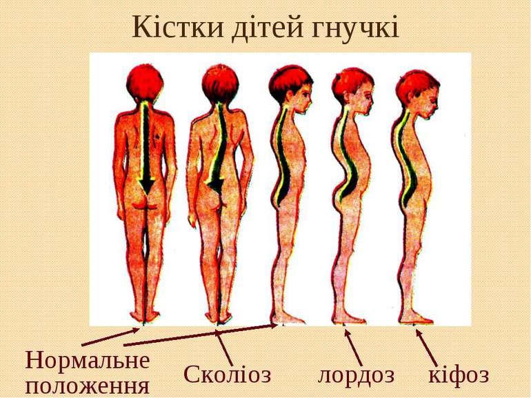 Кістки дітей гнучкі Сколіоз лордоз кіфоз Нормальне положення