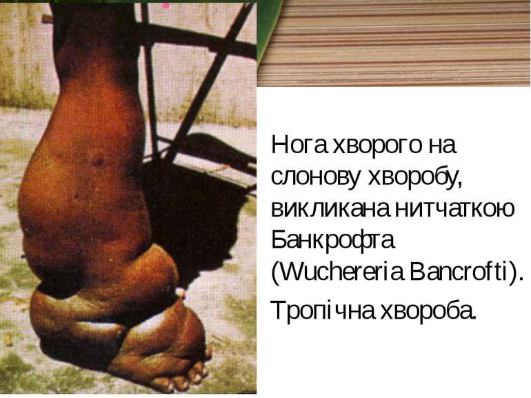 Нога хворого на слонову хворобу, викликана нитчаткою Банкрофта (Wuchereria Ba...