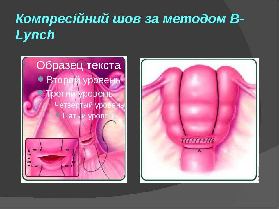 Компресійний шов за методом B-Lynch