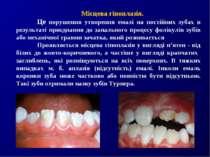 Місцева гіпоплазія. Це порушення утворення емалі на постійних зубах в результ...