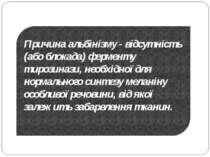 Причина альбінізму - відсутність (або блокада) ферменту тирозинази, необхідно...