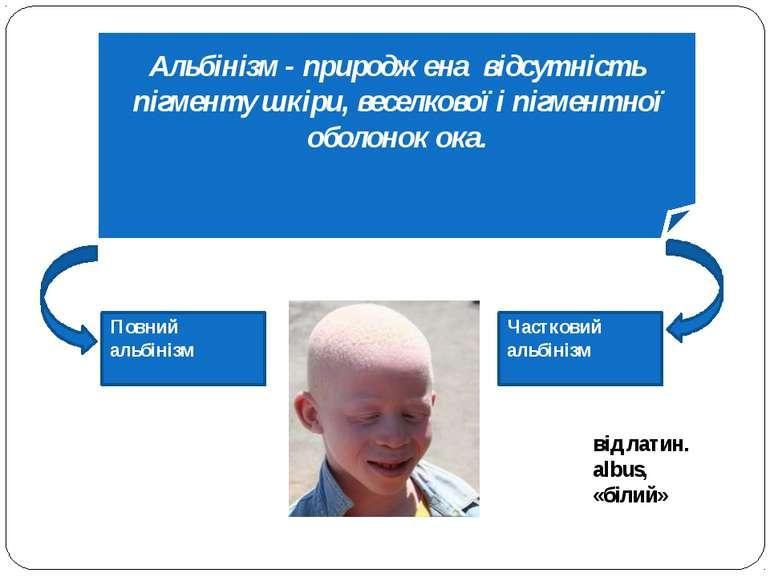 Повний альбінізм Частковий альбінізм Альбінізм - природжена відсутність пігме...