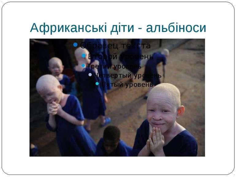 Африканські діти - альбіноси