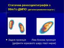 Статична реносцинтиграфія з 99mТс-ДМПО (діетилентриамінпентоацетат ) Задня пр...