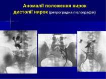 Аномалії положення нирок дистопії нирок (ретроградна пієлографія)