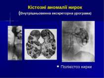 Кістозні аномалії нирок (Внутрішньовенна екскреторна урограма) Полікістоз нирки