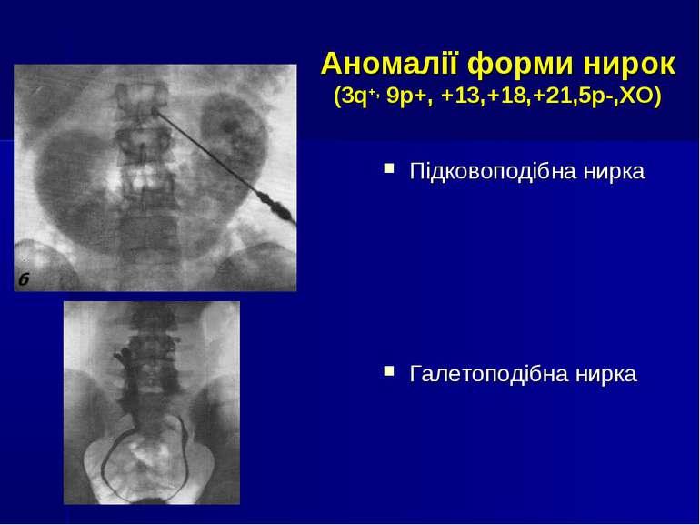 Аномалії форми нирок (3q+, 9р+, +13,+18,+21,5р-,ХО) Підковоподібна нирка Гале...