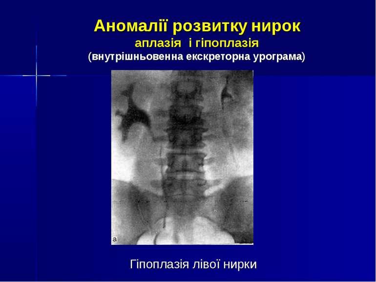 Аномалії розвитку нирок аплазія і гіпоплазія (внутрішньовенна екскреторна уро...