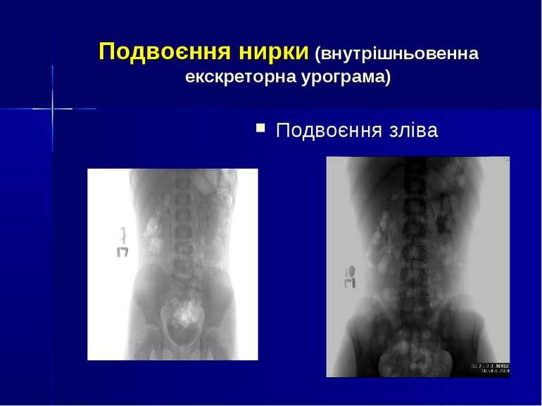 Подвоєння нирки (внутрішньовенна екскреторна урограма) Подвоєння зліва