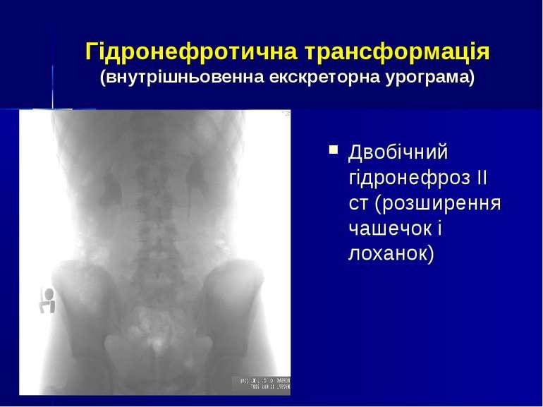 Гідронефротична трансформація (внутрішньовенна екскреторна урограма) Двобічни...