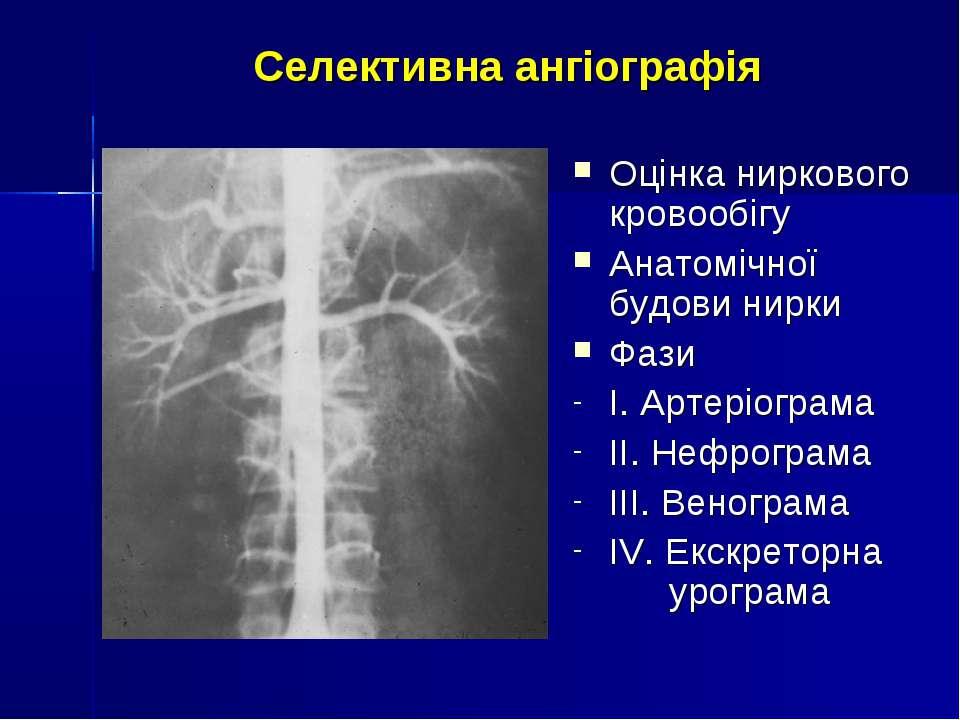 Селективна ангіографія Оцінка ниркового кровообігу Анатомічної будови нирки Ф...