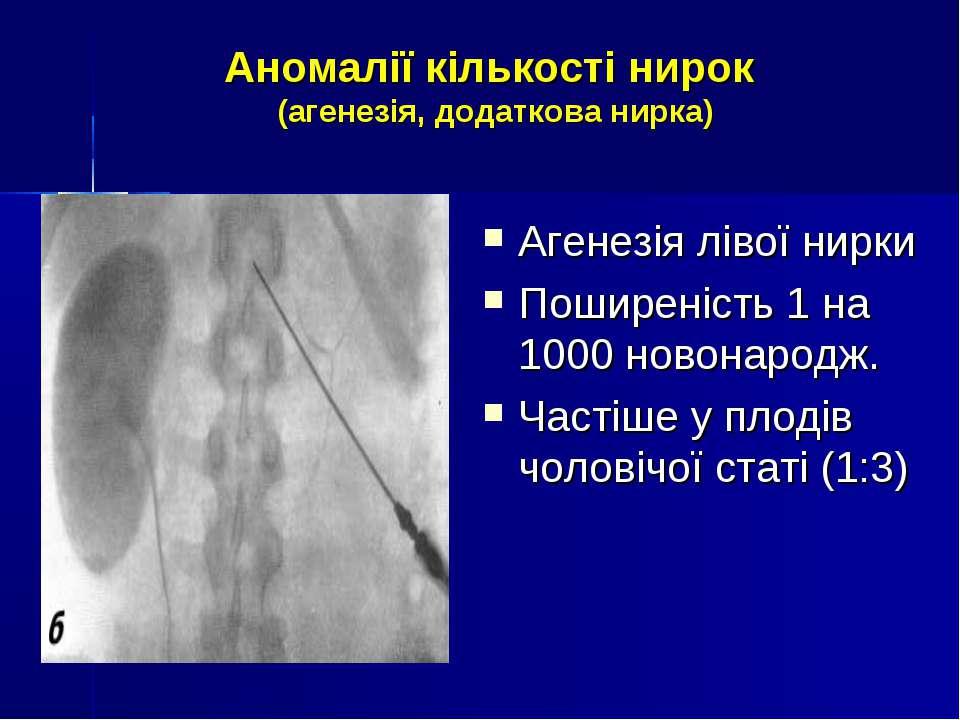 Аномалії кількості нирок (агенезія, додаткова нирка) Агенезія лівої нирки Пош...