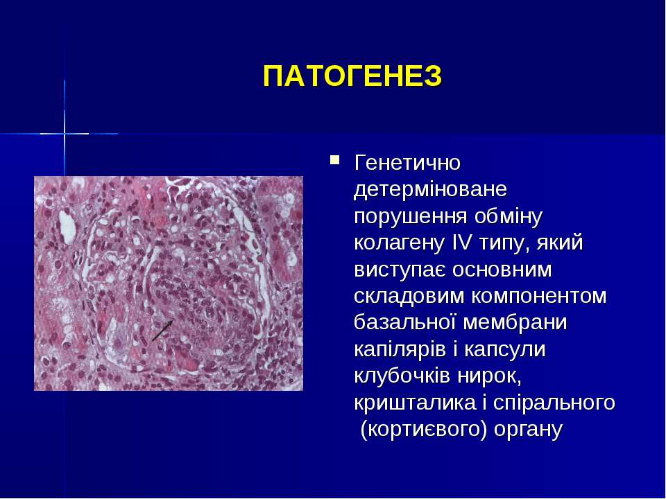 ПАТОГЕНЕЗ Генетично детерміноване порушення обміну колагену IV типу, який вис...