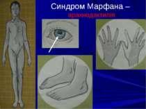 Синдром Марфана – арахнодактилія