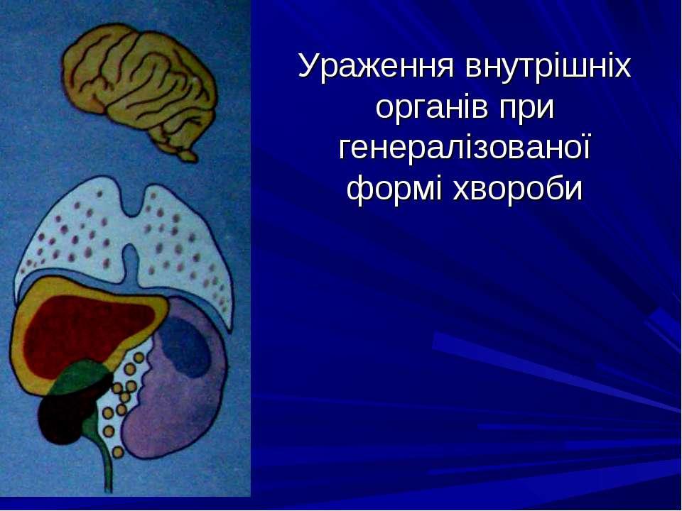 Ураження внутрішніх органів при генералізованої формі хвороби