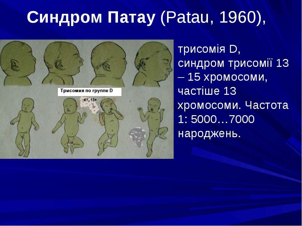 Синдром Патау (Patau, 1960), трисомія D, синдром трисомії 13 – 15 хромосоми, ...