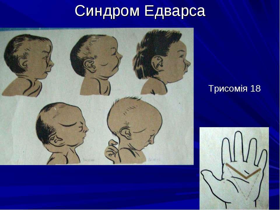 Синдром Едварса Трисомія 18