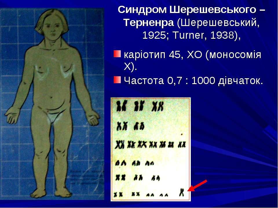 Синдром Шерешевського – Терненра (Шерешевський, 1925; Turner, 1938), каріотип...