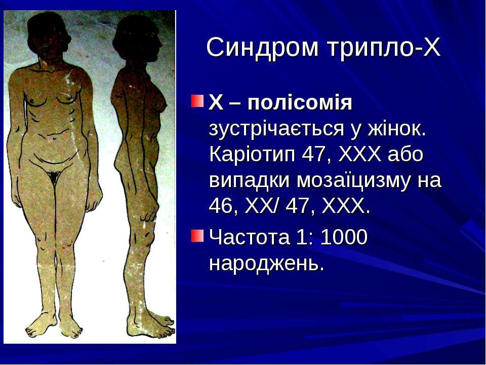 Синдром трипло-Х Х – полісомія зустрічається у жінок. Каріотип 47, ХХХ або ви...