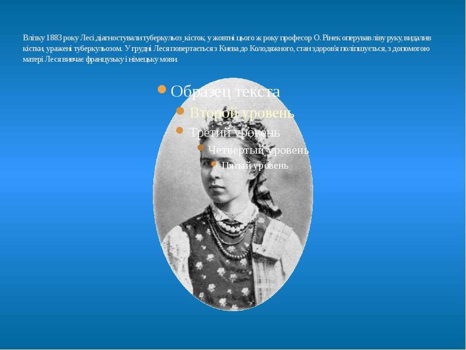 Влітку1883року Лесі діагностувалитуберкульоз кісток, у жовтні цього ж року...