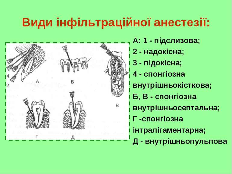 Види інфільтраційної анестезії: А: 1 - підслизова; 2 - надокісна; 3 - підокіс...