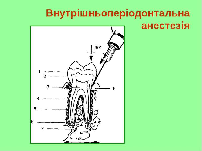 Внутрішньоперіодонтальна анестезія