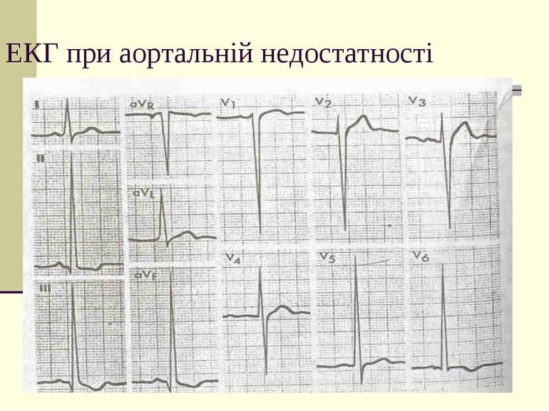 ЕКГ при аортальній недостатності