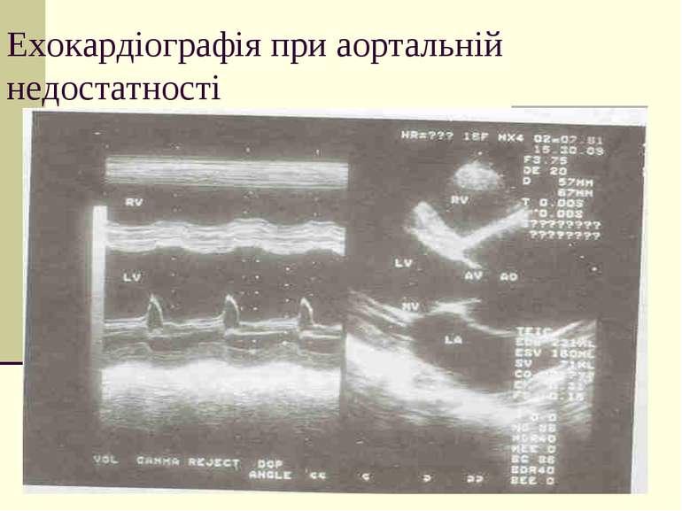 Ехокардіографія при аортальній недостатності