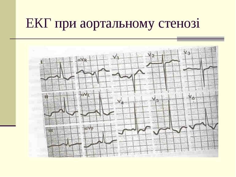 ЕКГ при аортальному стенозі