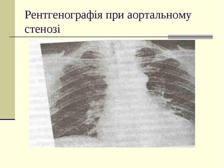 Рентгенографія при аортальному стенозі