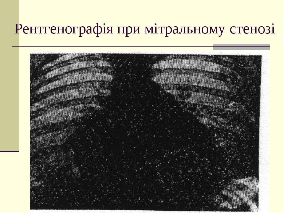 Рентгенографія при мітральному стенозі