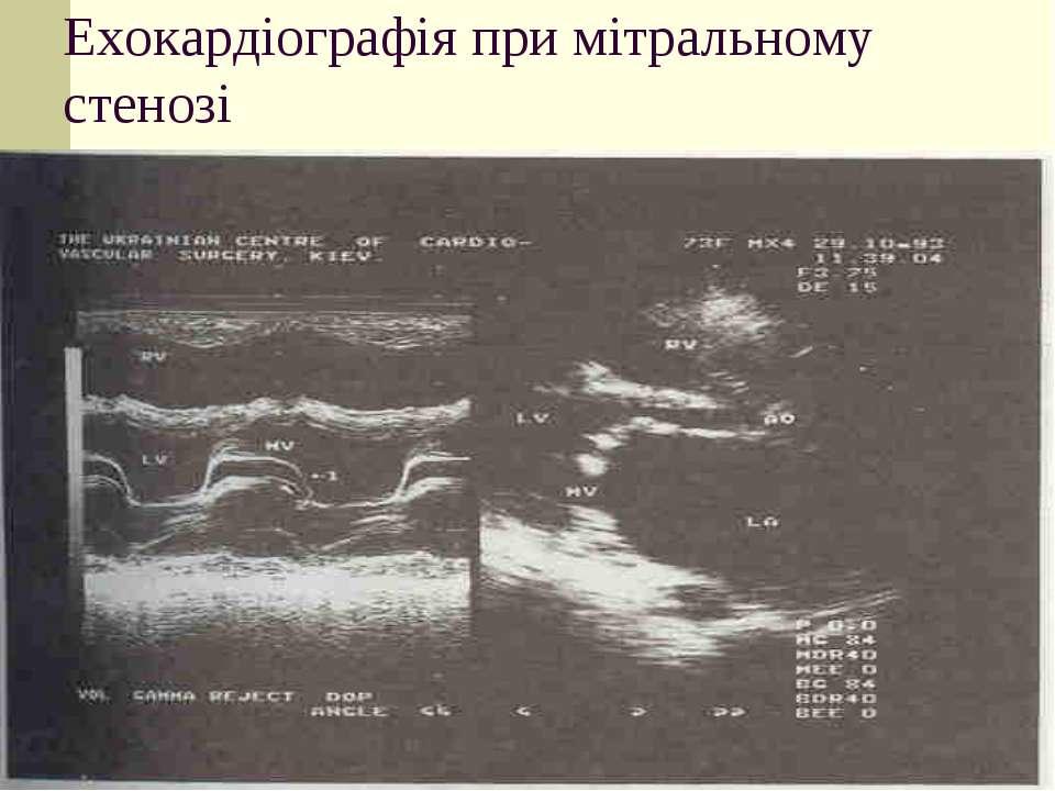 Ехокардіографія при мітральному стенозі