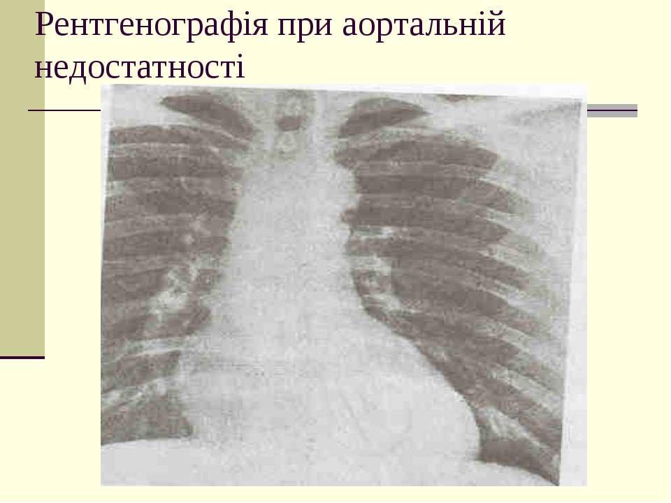Рентгенографія при аортальній недостатності