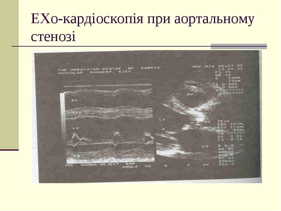 ЕХо-кардіоскопія при аортальному стенозі