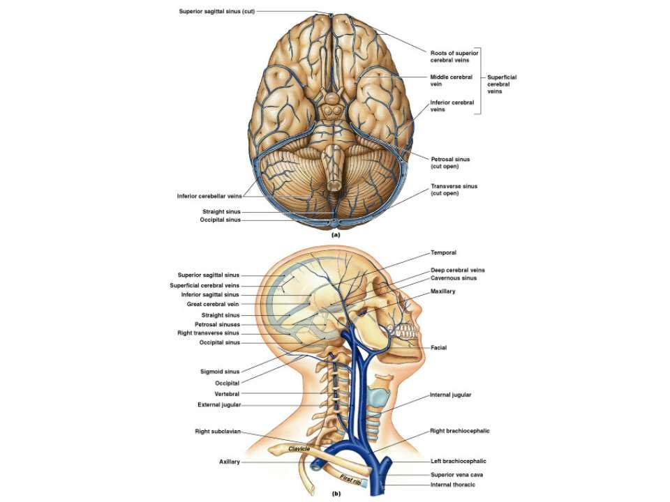 Figure 21-28