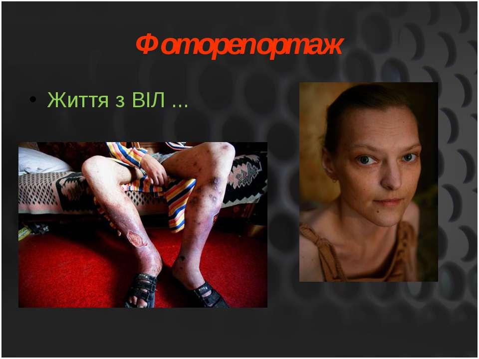 Життя з ВІЛ ... Фоторепортаж