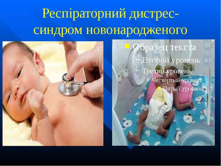 Респіраторний дистрес-синдром новонародженого