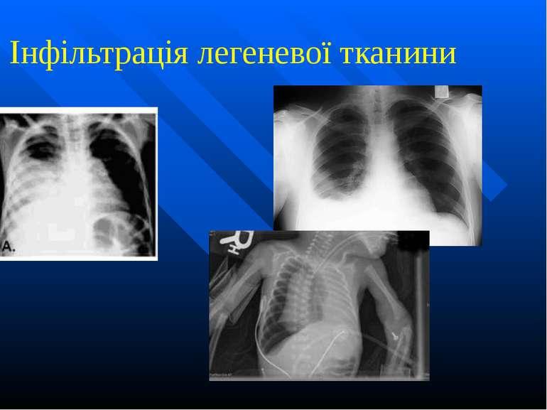 Інфільтрація легеневої тканини