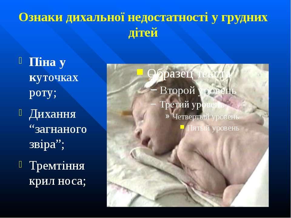 Ознаки дихальної недостатності у грудних дітей Піна у куточках роту; Дихання ...