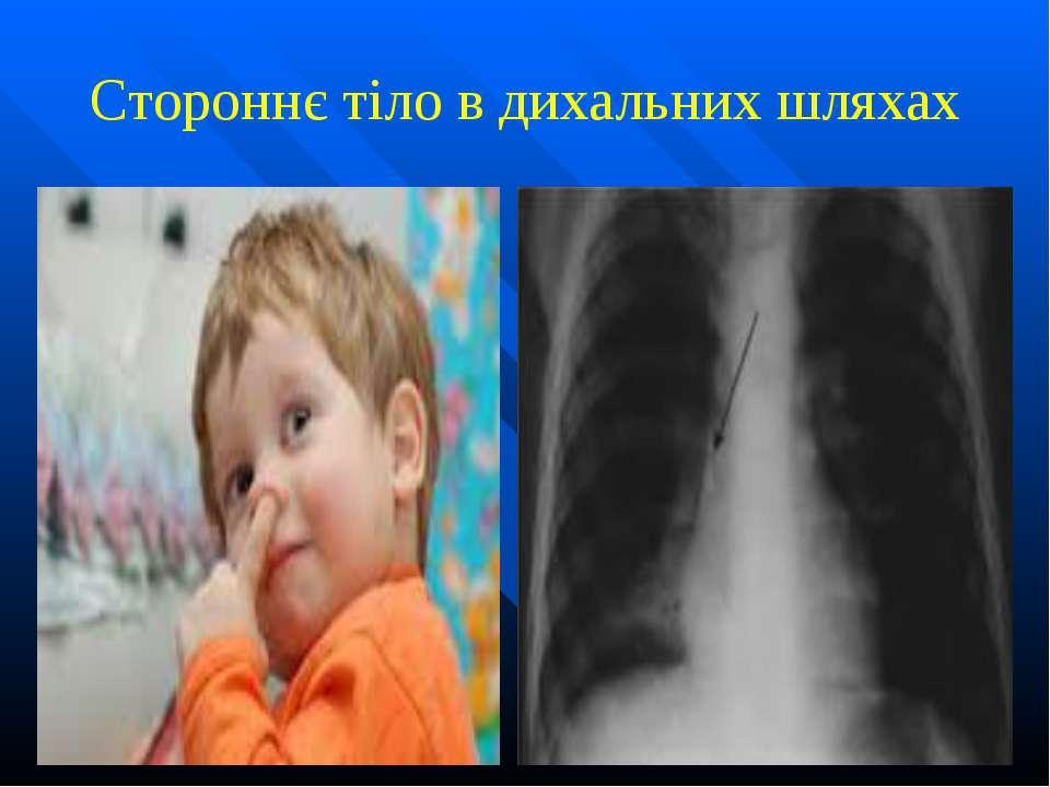 Стороннє тіло в дихальних шляхах