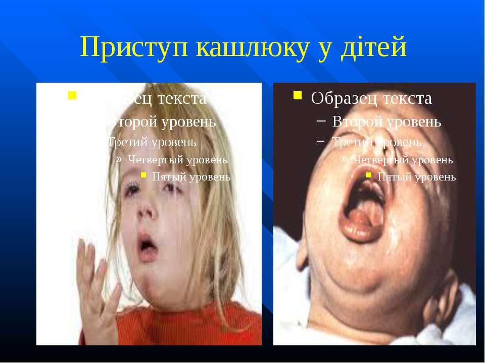 Приступ кашлюку у дітей